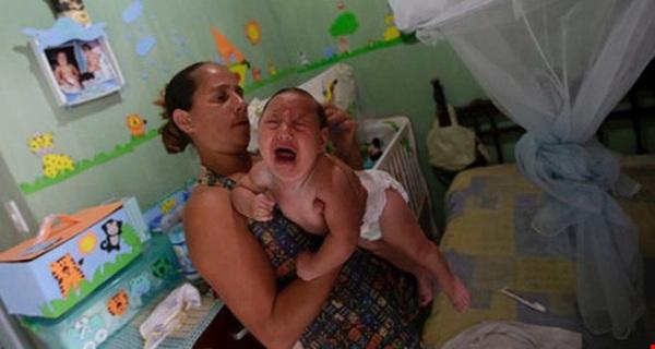 Khẳng định Virus Zika chính là thủ phạm gây teo não