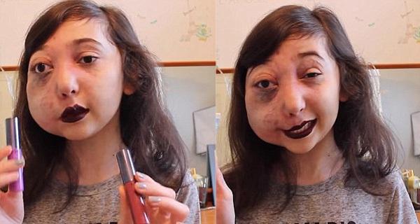 Cô bé có gương mặt biến dạng khiến hàng triệu người khâm phục