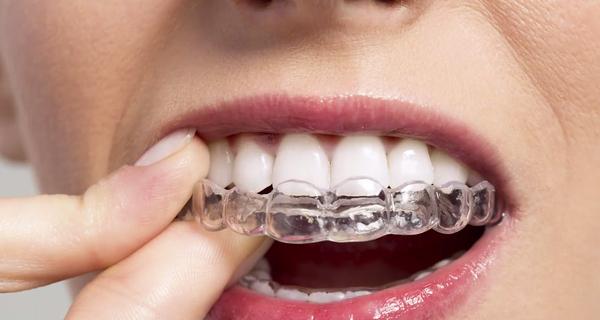 Dùng kem đánh răng hàng ngày mà răng vẫn vàng ố, nghe nha sĩ Mỹ chia sẻ 3 cách làm trắng răng tức thì