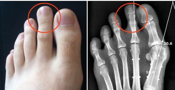 Ngón chân trỏ dài hơn ngón chân cái và cái kết chỉ 15% dân số thế giới phải chịu