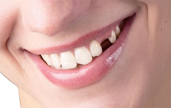 Kết quả hình ảnh cho Một số trường hợp lay nhiễm do sâu răng gây ra?