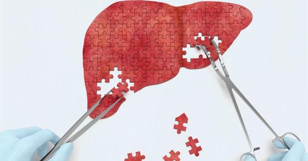 """Tổ chức y tế tại Mỹ: 8 dấu hiệu bạn đã mắc căn bệnh """"thầm lặng"""" rất nguy hiểm cho gan"""