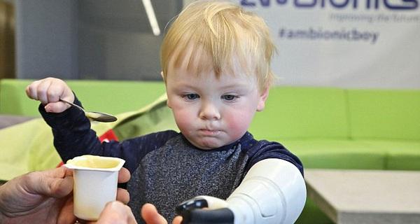 Bác sĩ nói không có tay giả cho trẻ em quá bé, ông bố này nghỉ việc để chế tạo một chiếc cho con mình