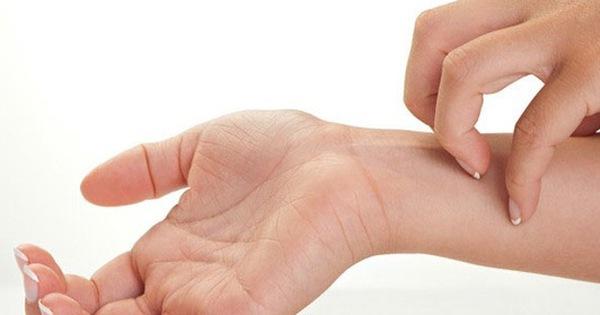 5 dấu hiệu cảnh báo bệnh ung thư da qua nốt ruồi