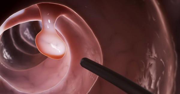 4 nhóm người buộc phải khám ung thư để tiêu diệt mầm bệnh ngay từ trong 'trứng nước'