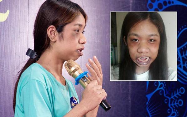 """Cô gái """"người khỉ"""" 22 năm há miệng vì 10 căn bệnh """"quái gở"""""""