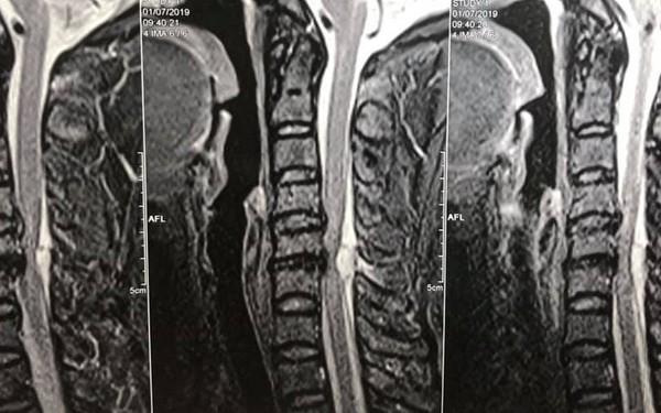 Từ vụ việc cấp cứu bệnh nhân liệt 2 chân ở bệnh viện Việt Đức, bệnh nhân thoát vị đĩa đệm cần lưu ý những gì?