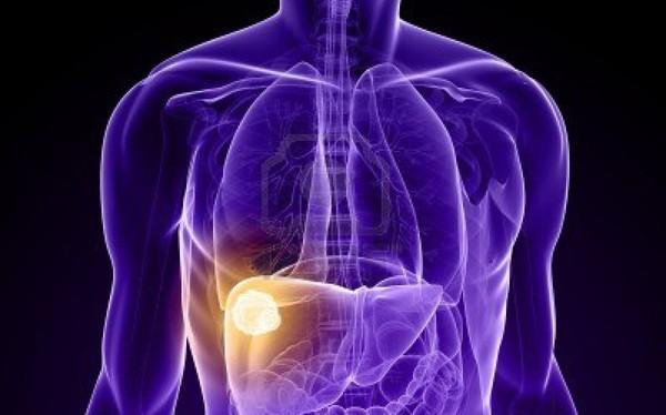 3 nhóm người này có nguy cơ mắc ung thư gan cao nhất, bạn có là một trong số họ?