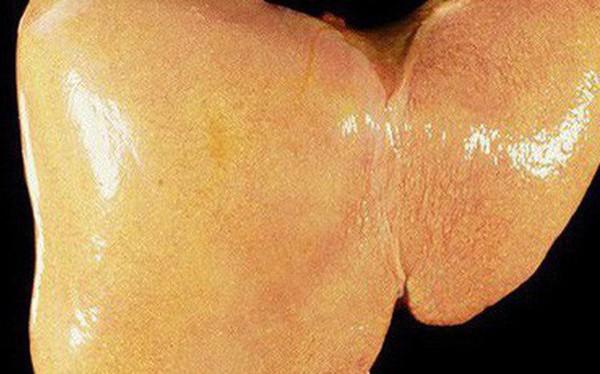 Nguyên nhân hình thành bệnh gan nhiễm mỡ: Dù ở lứa tuổi nào bạn cũng nên biết để tránh