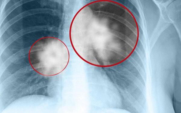 4 nhóm người có nguy cơ ung thư cao: BS khuyên khám ngay, chần chừ 1 năm cũng nguy hiểm