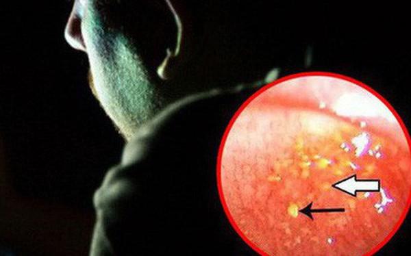 Chàng trai 26 tuổi có sỏi trong mắt vì thói quen về đêm mà nhiều người trẻ mắc phải
