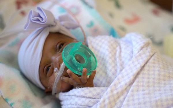 Bé gái nhỏ nhất thế giới được sinh ra ở Mỹ, nặng 245 gam, nhỏ chỉ bằng hộp sữa