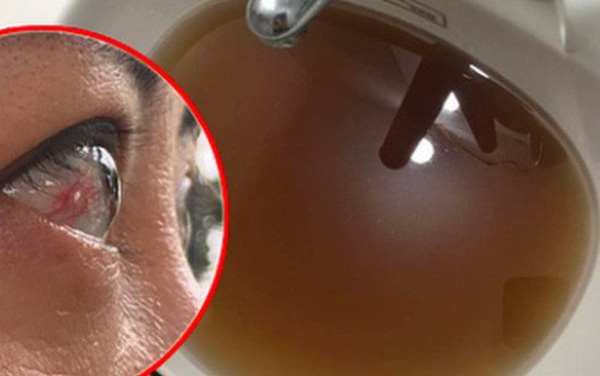 Kinh hãi nước sinh hoạt đen như cống ở chung cư Hà Nội: Người dân bị đau mắt, dị ứng không dám sử dụng
