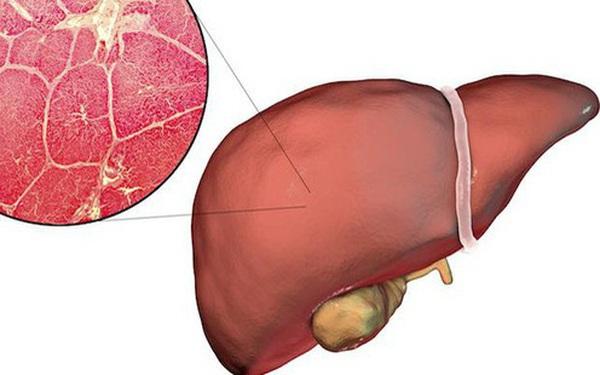 GS khoa gan khuyên: Làm 3 việc trước khi ngủ, gan thải độc tốt, giảm nguy cơ mắc bệnh