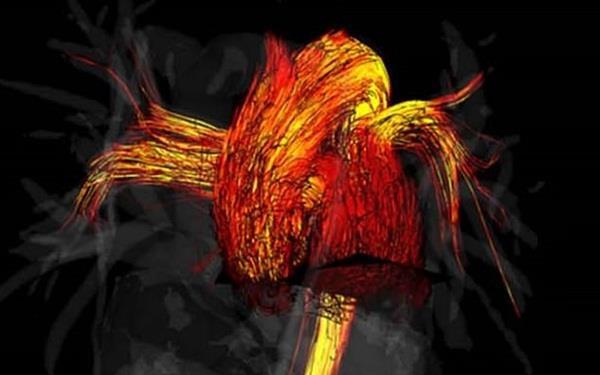 Khoa học chứng minh tim đàn ông hoạt động 'chăm chỉ' hơn tim phụ nữ