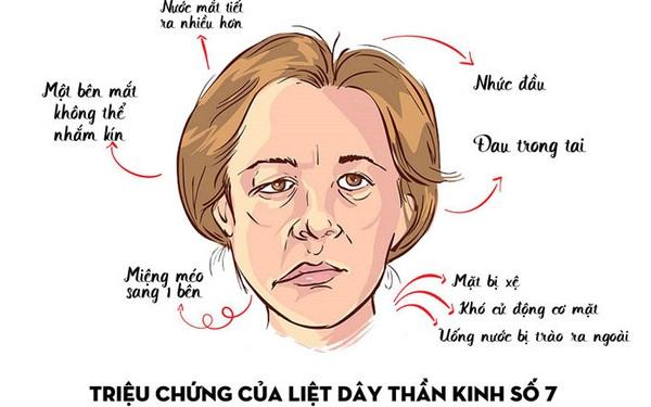Bệnh viện thẩm mỹ Gangwhoo – bệnh viện chữa liệt mặt tốt tại Tp Hồ Chí Minh