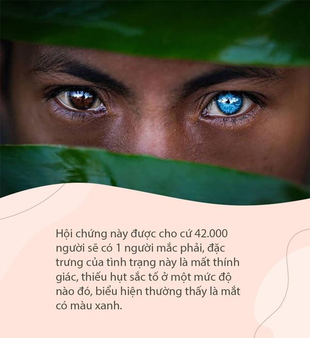 Sự thật đằng sau những đôi mắt xanh tuyệt đẹp phát sáng trong đêm tối của người dân bộ tộc mắt biếc kỳ lạ - Ảnh 2.