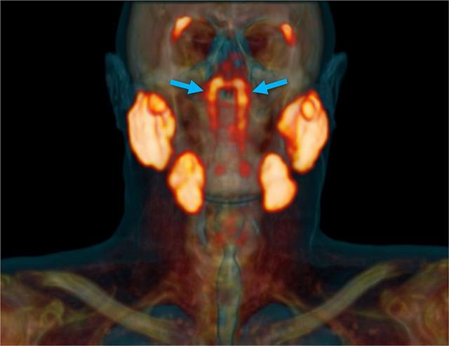 Các nhà khoa học vừa phát hiện một cơ quan hoàn toàn mới nằm sau mũi chúng ta - Ảnh 1.