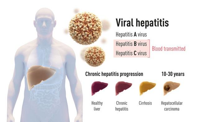 Giải Nobel Y học 2020 vừa được trao cho khám phá về virus viêm gan C đã cứu sống hàng triệu người - Ảnh 2.