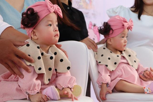 Gần 3 tháng sau ca phẫu thuật tách rời, cặp song sinh Trúc Nhi - Diệu Nhi được xuất viện, xuất hiện cực rạng rỡ và dễ thương - Ảnh 5.