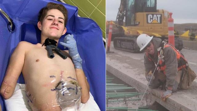 Nghị lực sống thần kỳ của chàng trai bị xe 4 tấn đè mất nửa thân người - Ảnh 1.