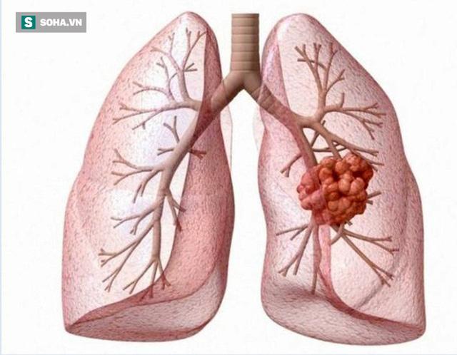 Không hút thuốc vẫn có thể mắc ung thư phổi: Chuyên gia chỉ cách tốt nhất phát hiện bệnh sớm - Ảnh 2.