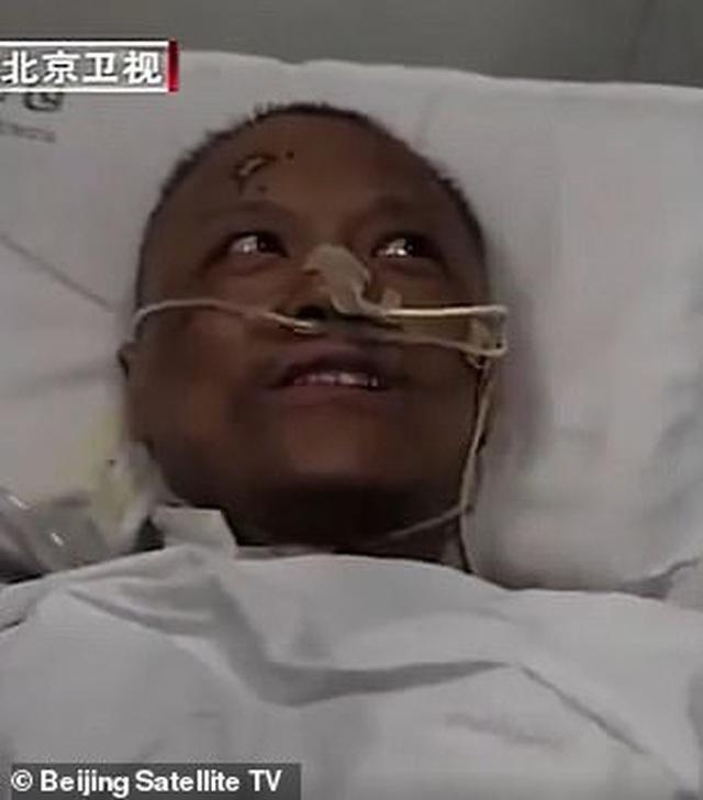 Hai bác sĩ Trung Quốc có làn da bị đổi sang màu nâu sau một thời gian dài chống chọi với Covid-19 - Ảnh 2.