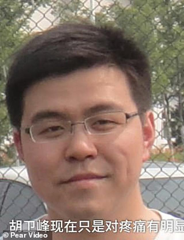 Hai bác sĩ Trung Quốc có làn da bị đổi sang màu nâu sau một thời gian dài chống chọi với Covid-19 - Ảnh 3.