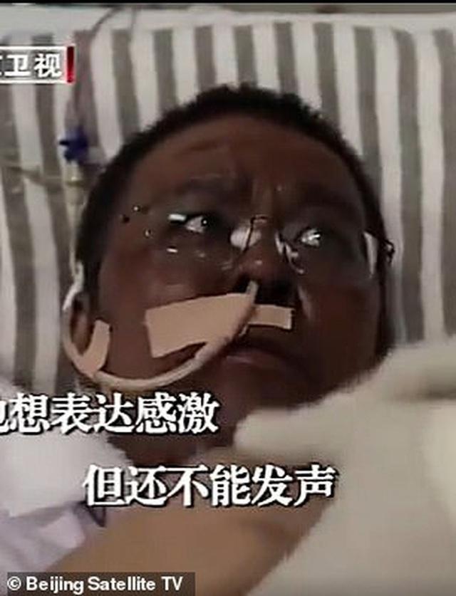 Hai bác sĩ Trung Quốc có làn da bị đổi sang màu nâu sau một thời gian dài chống chọi với Covid-19 - Ảnh 4.