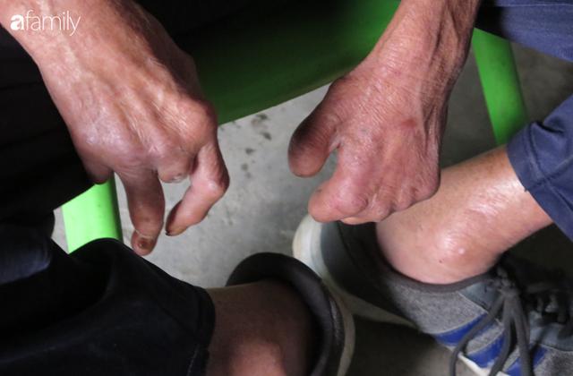 Tâm sự người đàn ông khuyết tật cả 2 tay, ngày ngày bán phế liệu nuôi 2 cháu sinh đôi cùng mẹ già 91 tuổi: Tôi không dám chết - Ảnh 2.