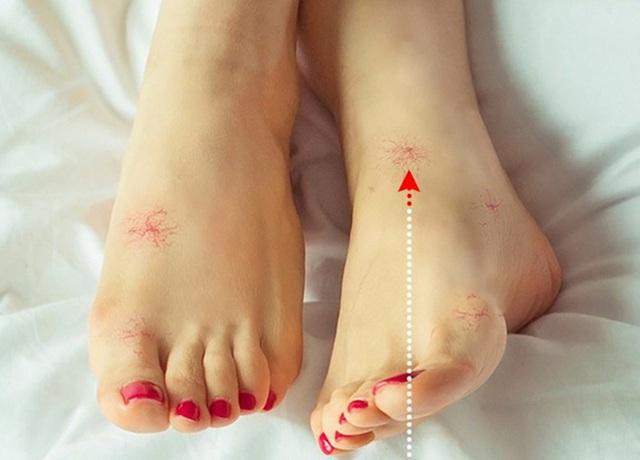 8 dấu hiệu ở chân cảnh báo bạn có thể đang mắc bệnh nguy hiểm - Ảnh 3.