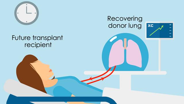 Đột phá: Phổi người tổn thương được chữa lành sau 24 giờ nối vào cơ thể lợn - Ảnh 5.