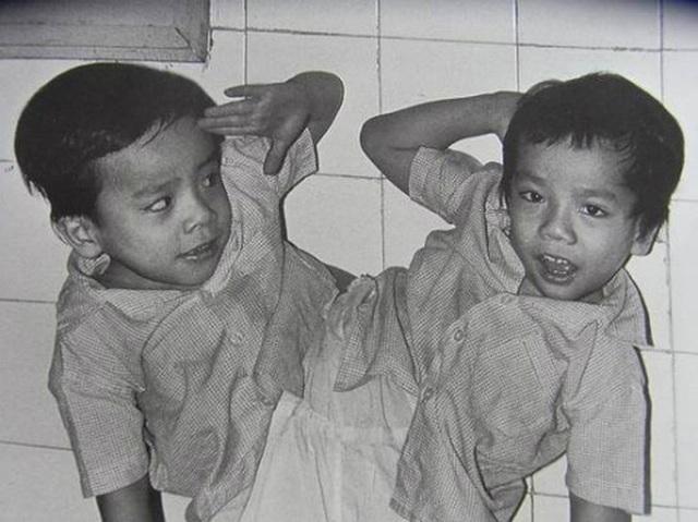 Nhìn lại ca phẫu thuật tách cặp song sinh Việt - Đức 32 năm trước: Ca mổ đi vào lịch sử y học Việt Nam - Ảnh 2.