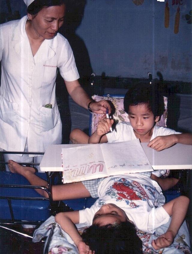 Nhìn lại ca phẫu thuật tách cặp song sinh Việt - Đức 32 năm trước: Ca mổ đi vào lịch sử y học Việt Nam - Ảnh 3.