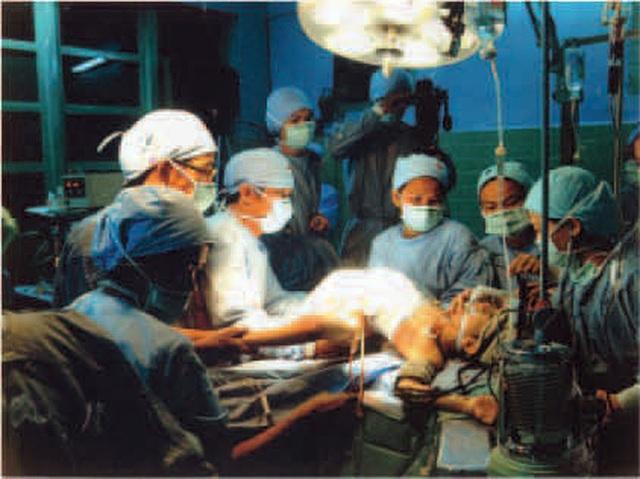 Nhìn lại ca phẫu thuật tách cặp song sinh Việt - Đức 32 năm trước: Ca mổ đi vào lịch sử y học Việt Nam - Ảnh 5.