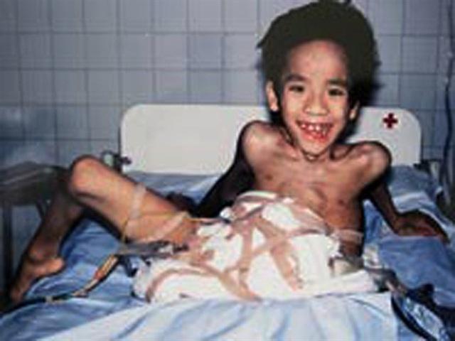 Nhìn lại ca phẫu thuật tách cặp song sinh Việt - Đức 32 năm trước: Ca mổ đi vào lịch sử y học Việt Nam - Ảnh 6.