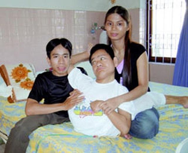 Nhìn lại ca phẫu thuật tách cặp song sinh Việt - Đức 32 năm trước: Ca mổ đi vào lịch sử y học Việt Nam - Ảnh 8.