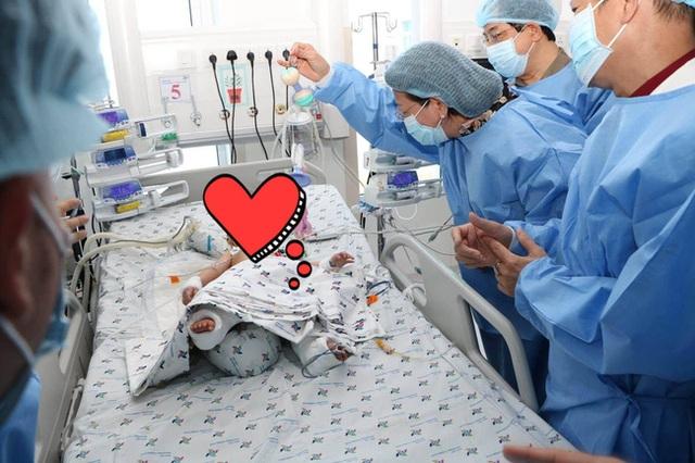 Trúc Nhi và Diệu Nhi được theo dõi sức khỏe thế nào trong phòng chăm sóc đặc biệt sau mổ?  - Ảnh 3.