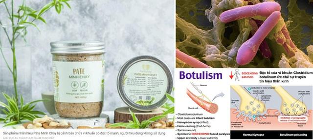 Vụ pate Minh Chay gây ngộ độc Botulinum: Tiến trình xử lý của cục An toàn thực phẩm ra sao? - Ảnh 1.