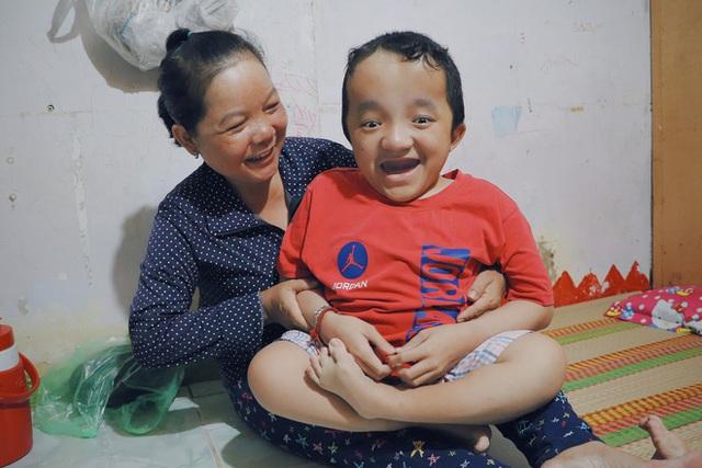 Đôi song sinh khuyết tật 14 tuổi hát cực hay, theo mẹ bán vé số khắp Sài Gòn: Cha tụi con mất rồi, chỉ còn có mẹ thôi - Ảnh 15.