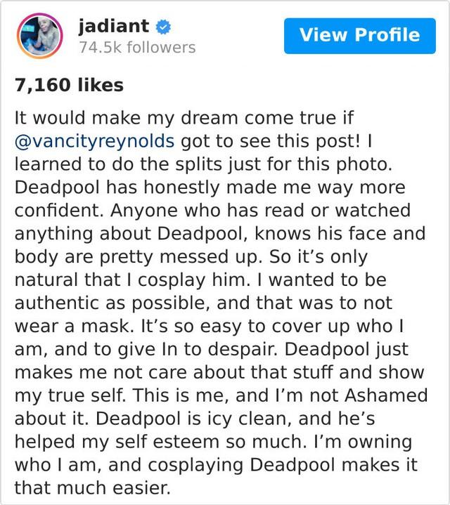 Hóa Deadpool phiên bản đời thực, chàng trai bị bỏng đến biến dạng khuôn mặt trở thành người truyền cảm hứng của MXH - Ảnh 1.