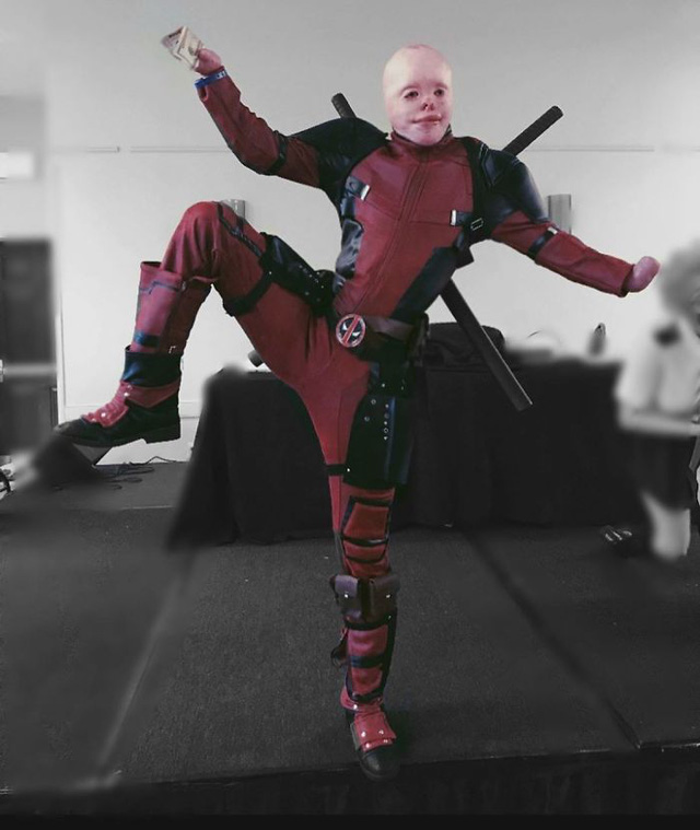 Hóa Deadpool phiên bản đời thực, chàng trai bị bỏng đến biến dạng khuôn mặt trở thành người truyền cảm hứng của MXH - Ảnh 5.