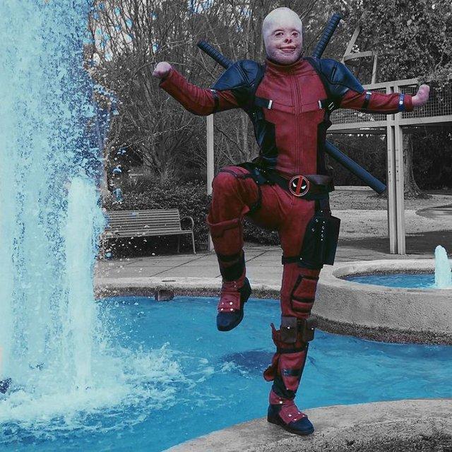 Hóa Deadpool phiên bản đời thực, chàng trai bị bỏng đến biến dạng khuôn mặt trở thành người truyền cảm hứng của MXH - Ảnh 8.