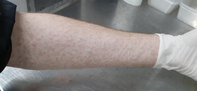 Kỷ lục: Nhà nghiên cứu cho 5.000 con muỗi đốt trong một ngày vì khoa học - Ảnh 4.