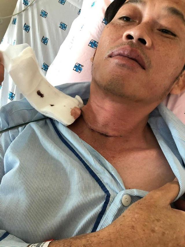 ĐỘC QUYỀN: Hoài Linh tiết lộ phải phẫu thuật K tuyến giáp cách đây vài tháng - Ảnh 1.