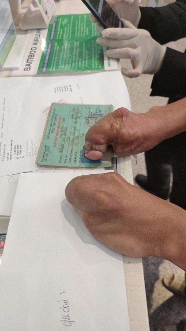 Nhận tin bố bị tai biến, chàng trai khuyết tật vội vã ra sân bay gom tất cả tiền lẻ chỉ được 350k và tấm vé quý giá của tình đồng bào - Ảnh 4.