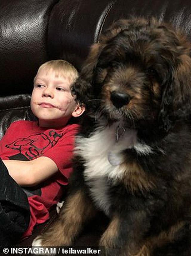 """Phải khâu 90 mũi vì xả thân cứu em gái khỏi chó dữ, cậu bé được thế giới phong người hùng"""" và khuôn mặt hiện tại gây xúc động mạnh - Ảnh 10."""