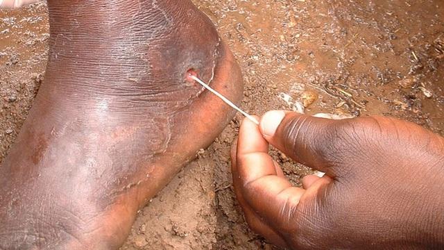 Bí ẩn đằng sau con rắn trong chân người mà Hoa Đà phát hiện cách đây 2000 năm, giúp y học ngày nay giải mã loại bệnh này - Ảnh 3.