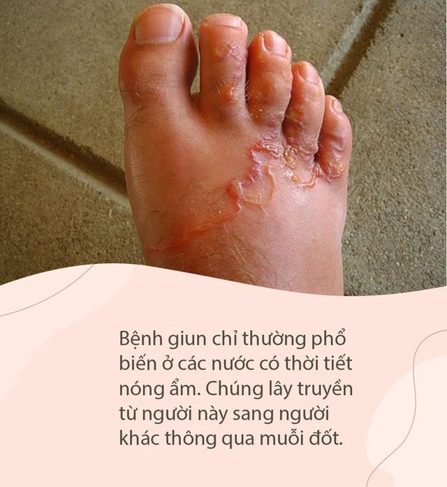 Bí ẩn đằng sau con rắn trong chân người mà Hoa Đà phát hiện cách đây 2000 năm, giúp y học ngày nay giải mã loại bệnh này - Ảnh 4.