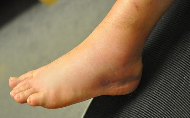 Bác sĩ nhắc nhở: Nếu bàn chân có tín hiệu này thì 80% ung thư gan đã xuất hiện, cần nhanh chóng kiểm tra  - Ảnh 3.
